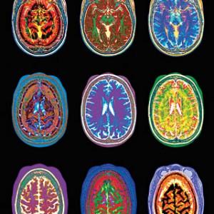 Brain-Scan-2-300x300